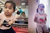 賈靜雯女兒確診弱視,戴上超厚眼鏡,娃有這3種情況,一定要及早注意